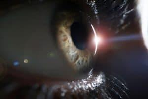 อันตรายจากรังสี UV ต่อสายตา22